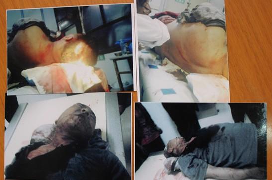 李爱军/事发当晚李爱军在医院抢救时家属拍摄的照片
