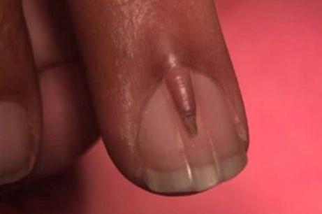 男子指甲盖长出小指甲